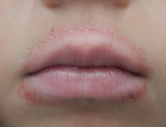 perioral-dermatitis-on-mouth